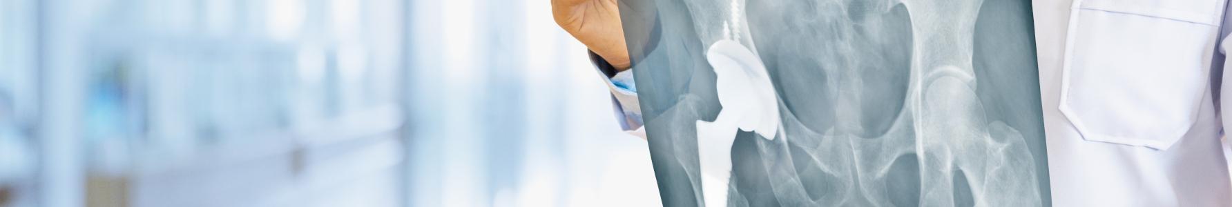 Choroba Pageta - lekarz trzymający zdjęcie RTG miednicy i kończyn dolnych.